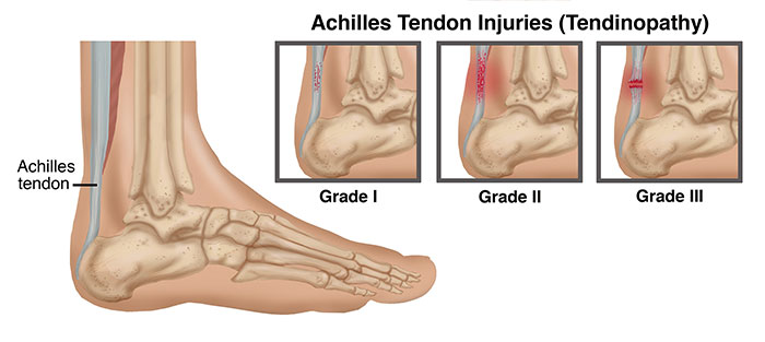 achilles_tendon_