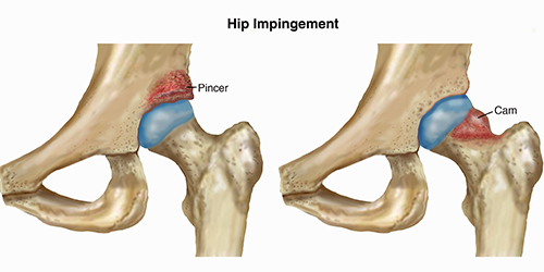 Hip-Impingement