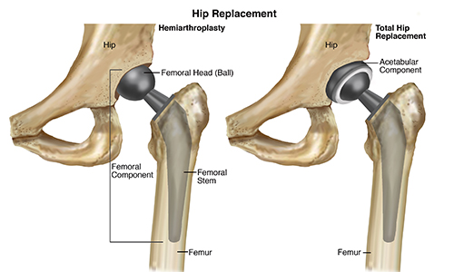 HipReplacement-SM