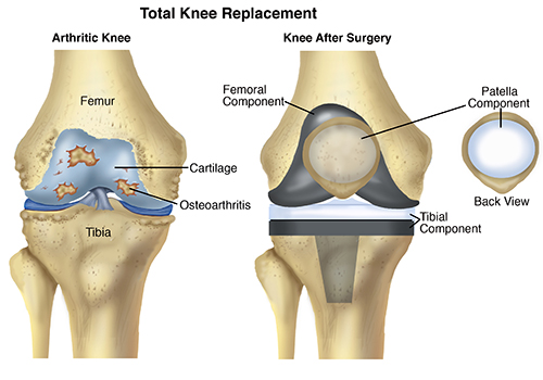 KneeReplacement-SM
