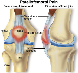 Patellofemoral-Pain