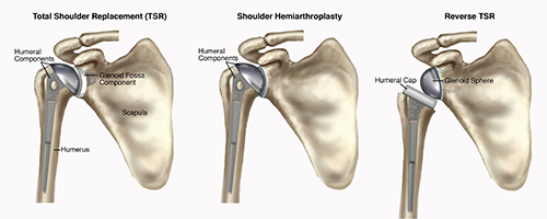 ShoulderReplacement-SM
