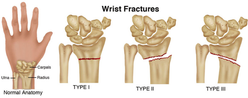 WristFractures_SM